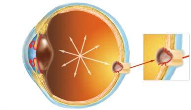 глаукома первой степени